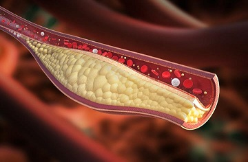 High cholesterol on a ketogenic diet